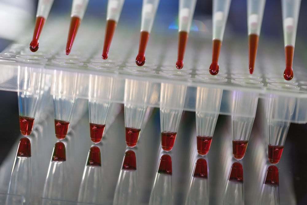 bloodsample-red-header